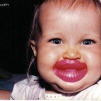 ugly lips