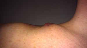 protruding clavicle