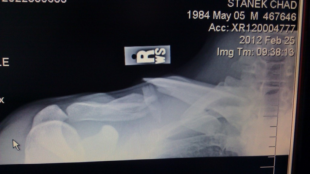 broken clavicle xray