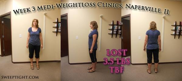 weight loss results week 3 Jodi
