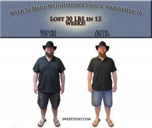 Before and after weight loss picture