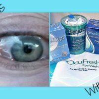 eye allergy chemosis