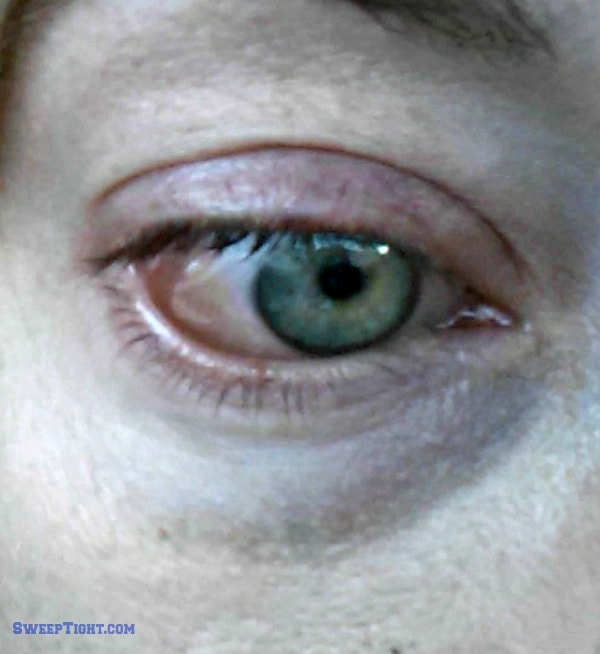 chemosis eye