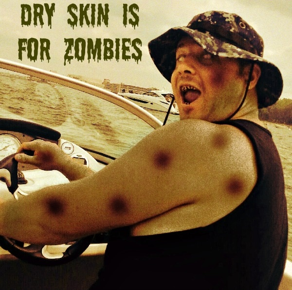 Dry skin is for zombies