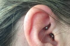 I Tried the Daith Piercing for Migraines