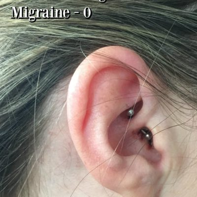 I Tried the Daith Piercing