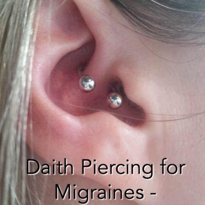 Ear Piercing for Migraines