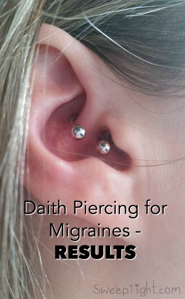Picture of an ear with the daith pierced - ear piercing for migraines
