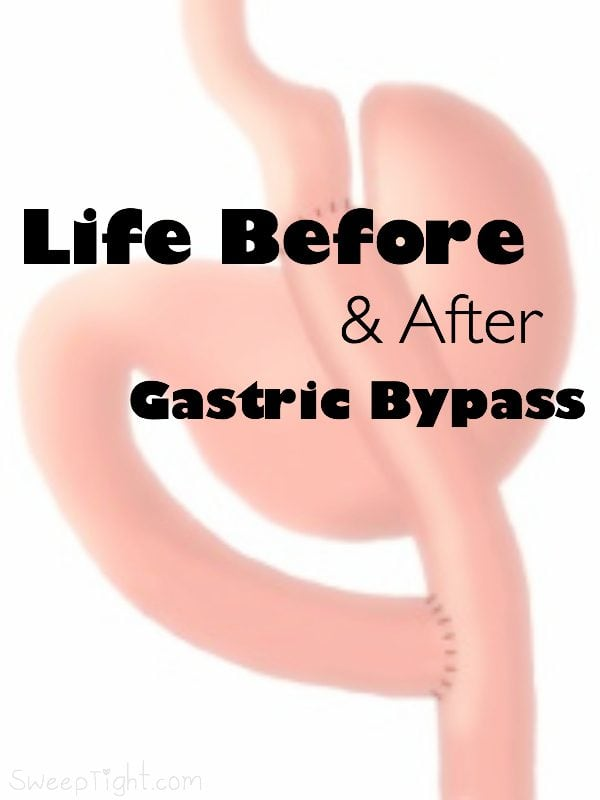 Life Before and After Gastric Bypass - Roux-en-Y