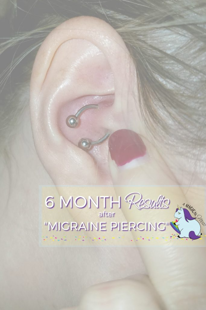 6 Months of results after daith piercing for migraines.
