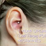 Migraine Piercing – 1 Year Results After Daith Piercing for Headaches