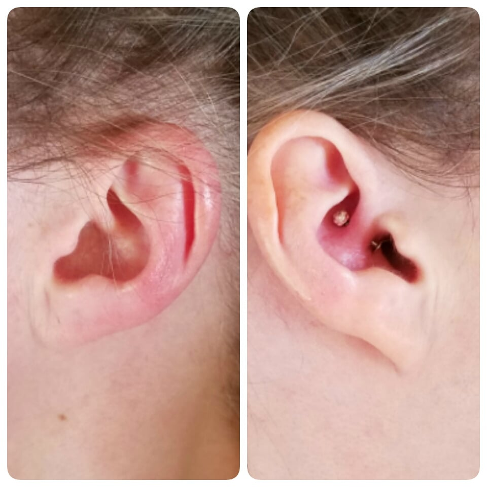 Migraine piercing - swapped my daith piercing jewelry and failed. :(