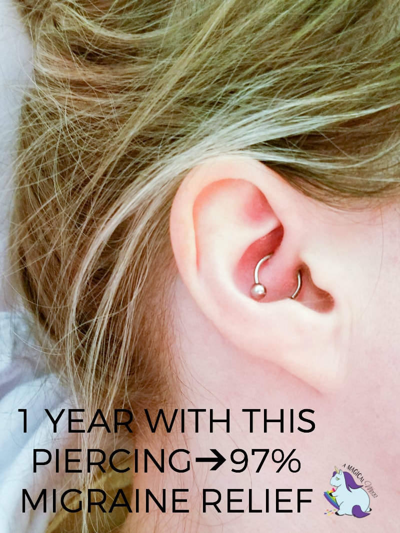 Migraine Piercing - 1 Year Results After Daith Piercing for Headaches