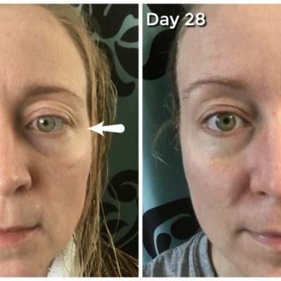 Aging Skin Problems and How I am Fighting Them